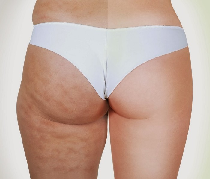 Natural Cellulite Treatments For You