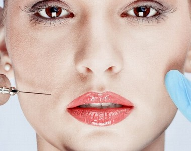 Four Things You Should Know About Dermal Fillers