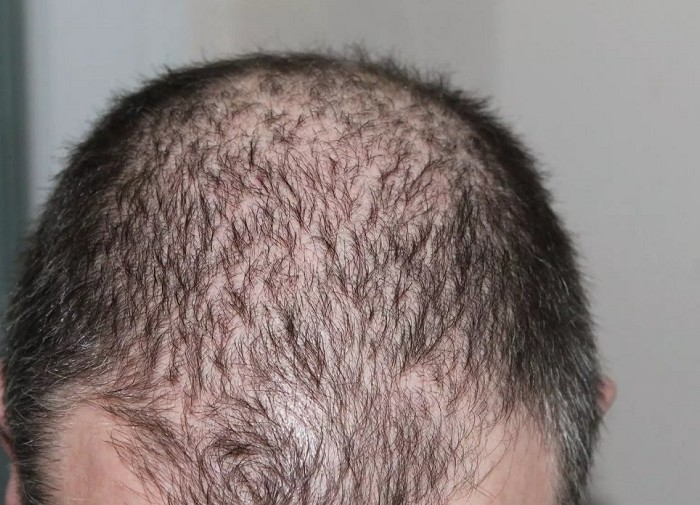 Shedding after a Hair Transplant is Common Phenomenon