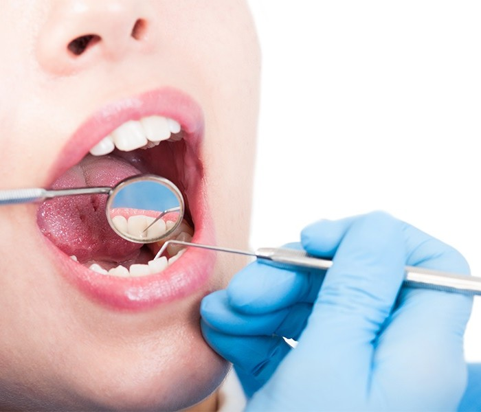 Factors to Considering Before You Look For Singapore Dental Clinic