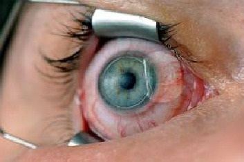 Check If you are Suitable for Lasik Surgery