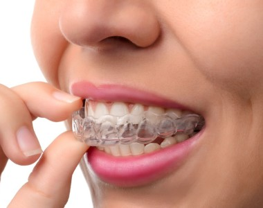 Invisalign: The Most Easy & Successful Way to Straighten Crooked Teeth
