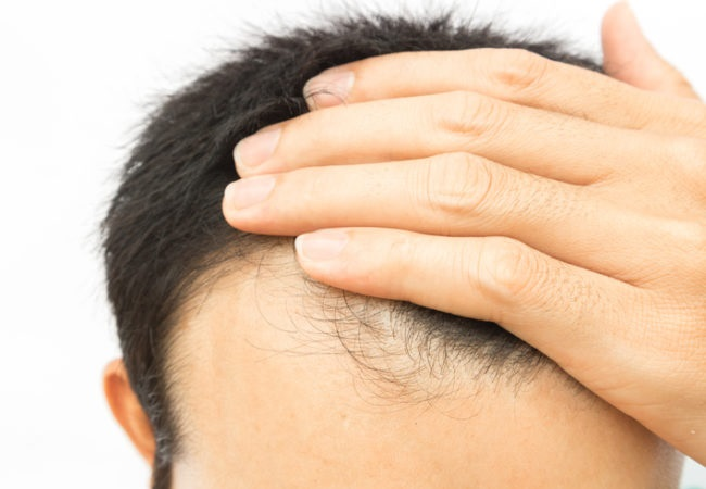 Why Hair Transplant is a Safe and Effective Hair Growth Procedure