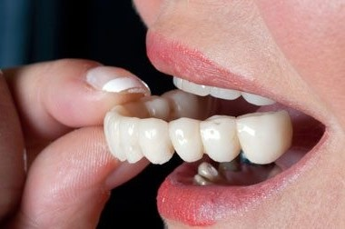 What Is the Difference Between Dental Crowns and Tooth Bridges?