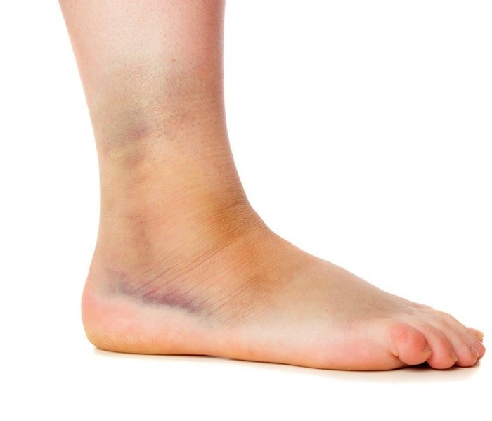Common Foot or Ankle Injuries and What to Do with Them