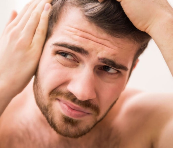 Dealing with hair fall problem at a very young age?