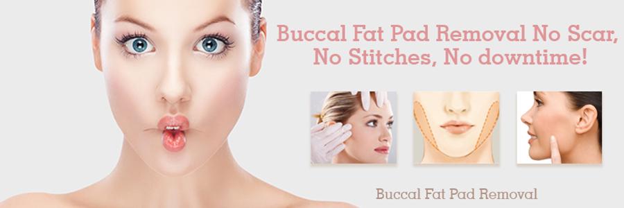Buccal-Fat-Pad-Removal-vadodara