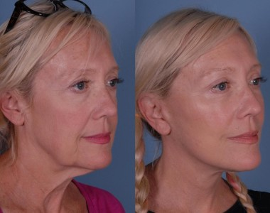 Is a Mini Facelift the Right Procedure for Me?