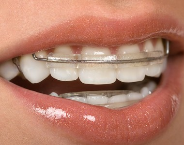 Few Ways How Invisible Braces Can Be Of Great Help!
