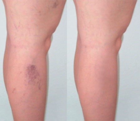Here's What Vein Clinics Have to Offer