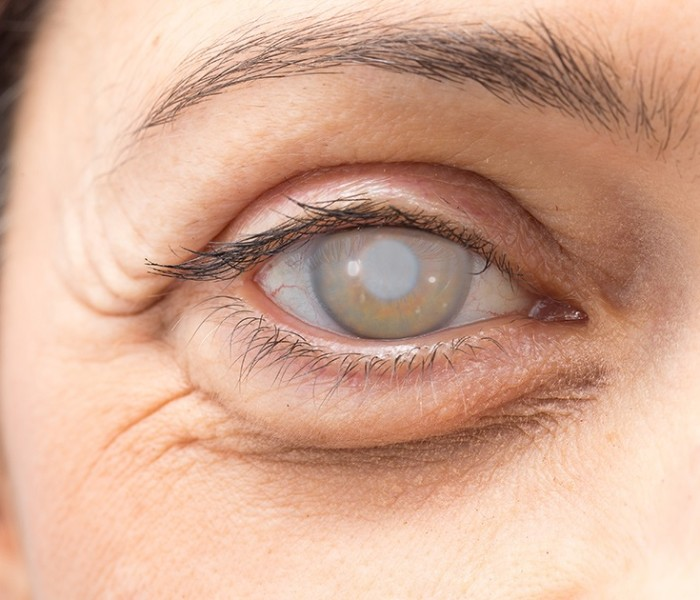What is cataract surgery and who should get it?