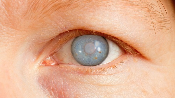 female-eye-cataract-glaucoma-natural-remedies-ss-FEATURE-
