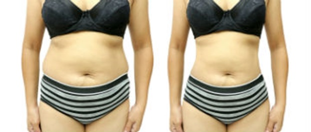 Quickly Lose Weight With Modern Liposuction