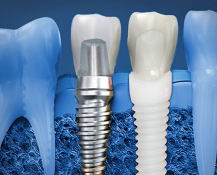 Know the Procedure for Dental Implants in Australia!