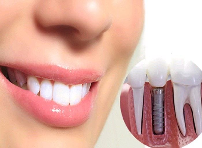 Restore Your Smile With Multiple Dental Implants!