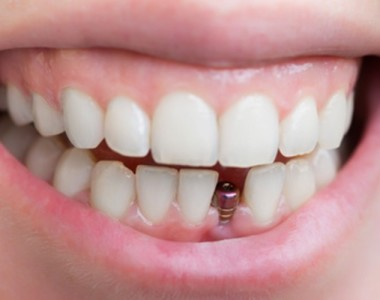 DENTAL IMPLANTS CAN BOOST CONFIDENCE & SELF-ESTEEM