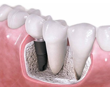 Opt for a Single Dental Implant Makes your appearance better