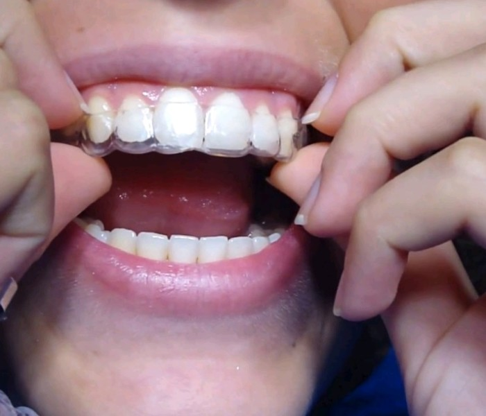 What Are The Factors That Determine The Invisible Braces Cost In Sydney?