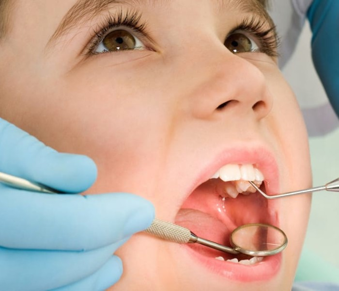 What are the Diseases for Which You Need to Visit Dentists Immediately?