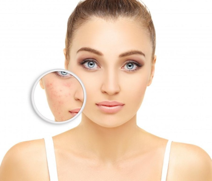 What You Need to Know about Choosing the Right Facial Skin Rejuvenation Treatment