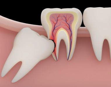 All about Dry Socket after Wisdom Teeth Removal