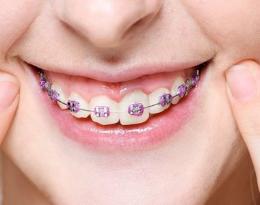Foods You Can Eat With Braces