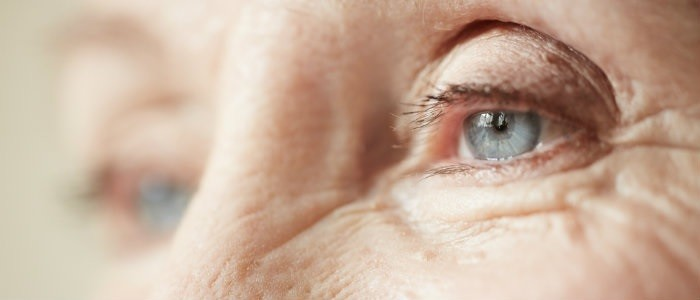 Catch These Early Signs of Cataract Issues Before It's Too Late