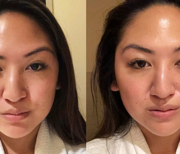 Work Your Face Out With a Microcurrent Facial