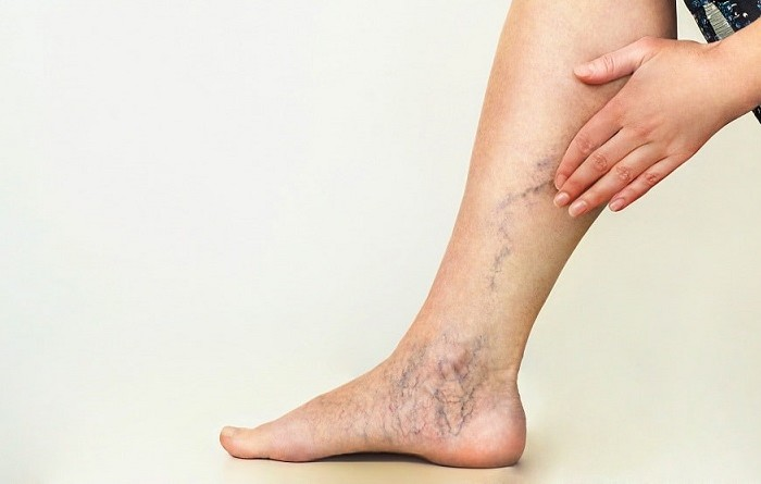 What Are the Varicose Veins and How Can They Be Treated