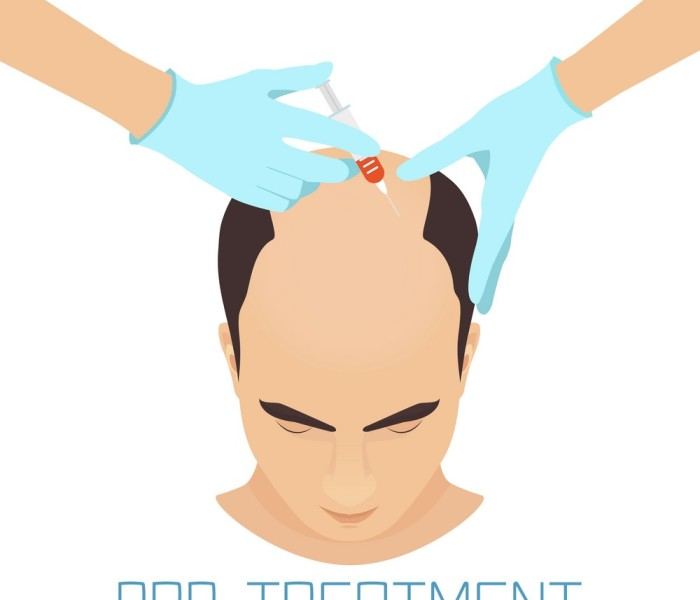 Things one must know before PRP Hair Treatments!